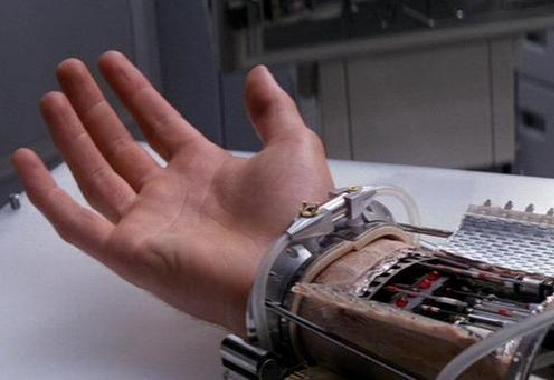 Un modello di mano bionica