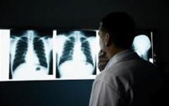 Tumore al polmone, è la prima causa di morte per cancro